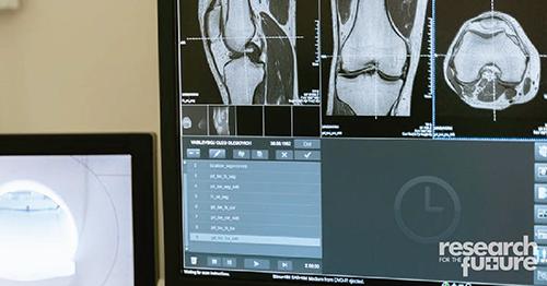 X-ray - bone scan